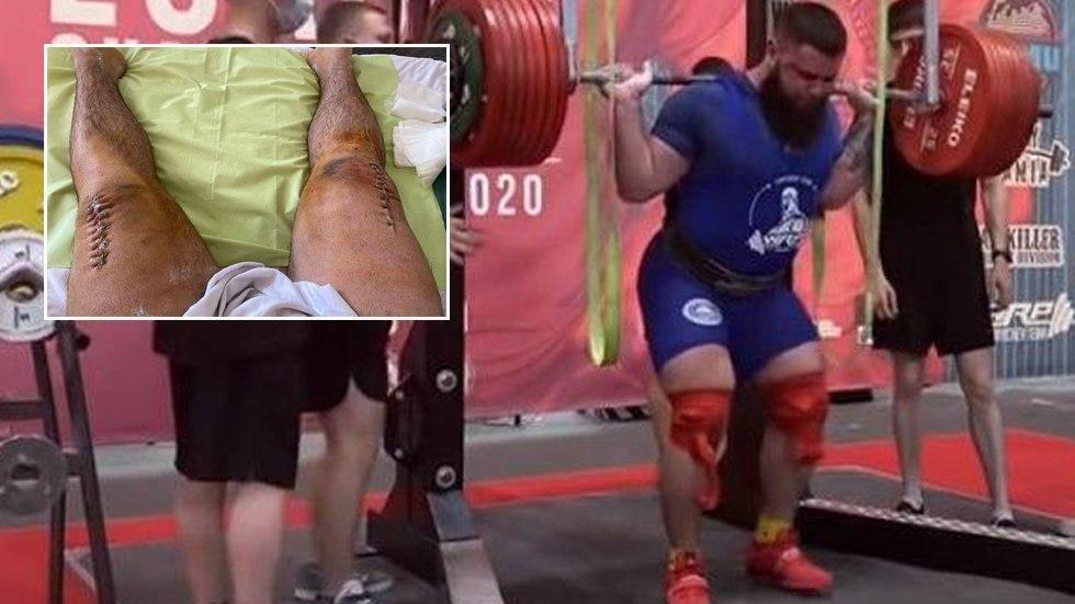 Рускиот кревач ги покажа страшните последици по кршењето на колената (вознемирувачко)