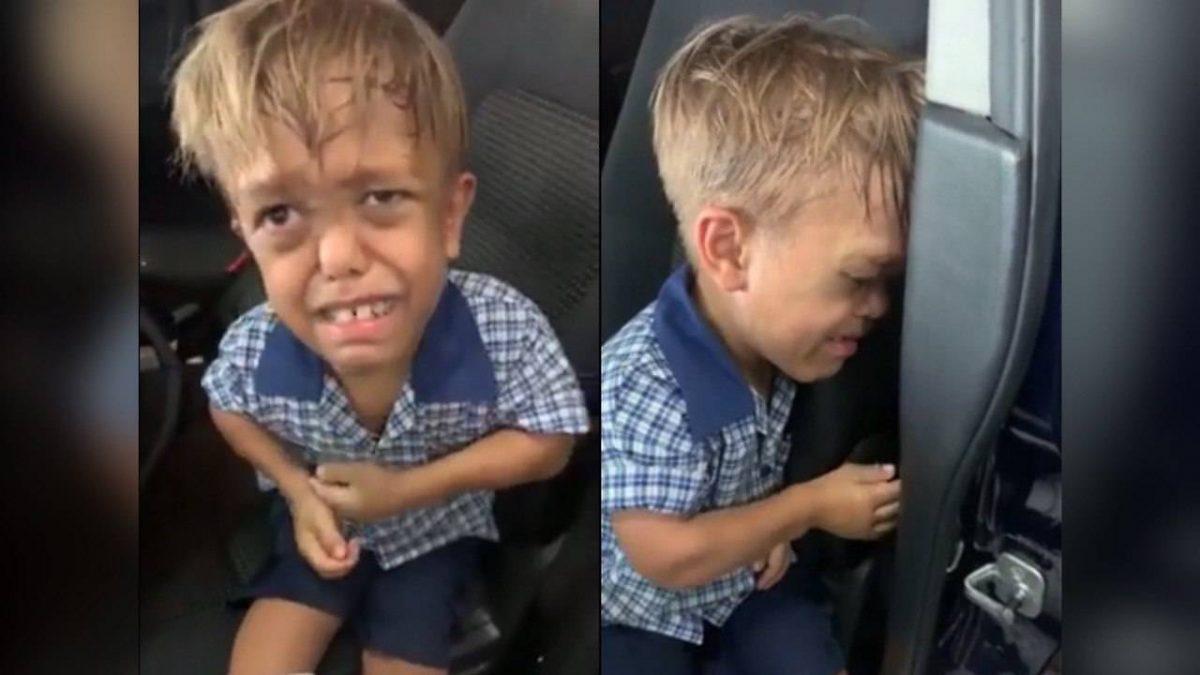 (Видео) Детето кое сакаше да се самоубие помина низ тешка операција