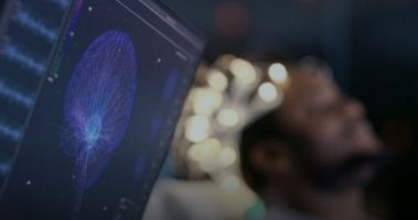 Мозокот може да остари десет години поради инфекција со коронавирус
