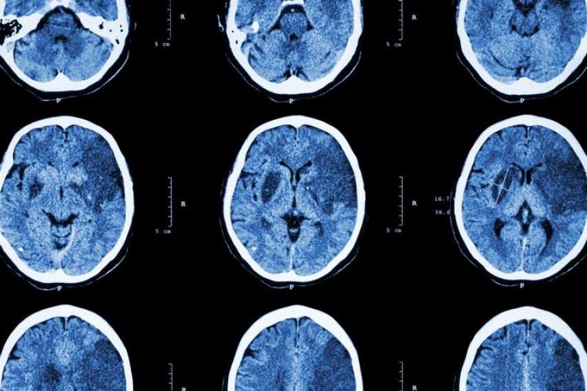 Овој отров живее во нашиот мозок до три години