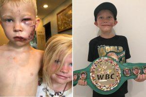 ВБЦ креираше категорија во чест на храброто момче кое ја спаси својата сестра