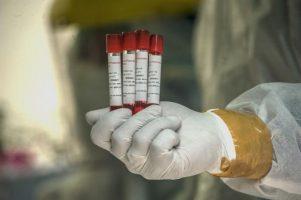 Кој прележал коронавирус ќе биде имун со години?