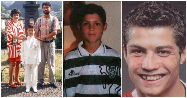 Кристијано Роналдо: Момчето со крупни очиод Мадеира кому акните и забите му го грдеа лицето