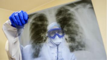 На руските научници во борбата против коронавирусот ќе им помага вештачка интелигенција