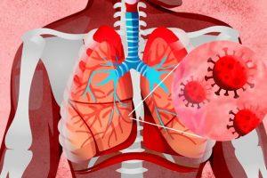 Руски рецепт што ќе ви ги спаси белите дробови во тек на респираторна инфекција