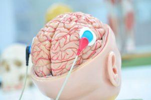 Коронавирусот не мора да влезе во мозокот за да го оштети!