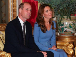 Принцот Вилијам се подготвува за трансплатација на коса