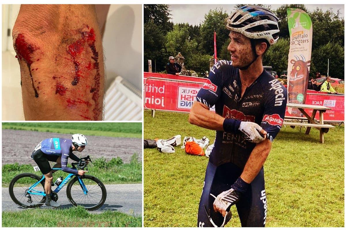 Го нападнале со мачети и му го украле велосипедот од 12.000 евра